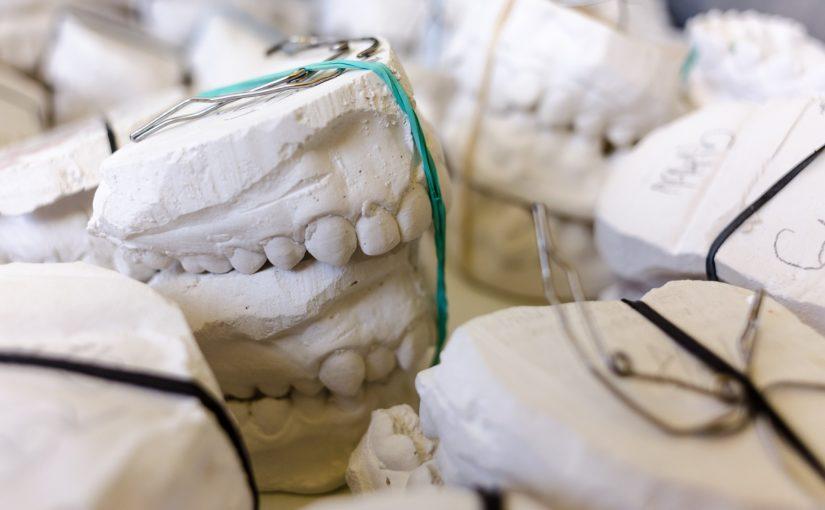 Zły sposób żywienia się to większe deficyty w zębach oraz także ich utratę